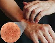 Лечение дисгидроза